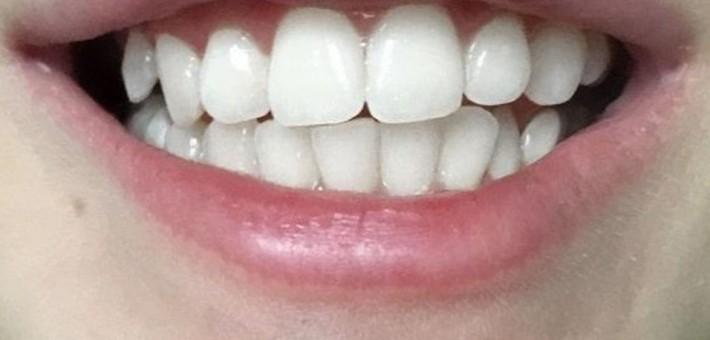 Про лазерное отбеливание зубов спб
